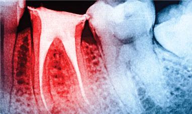 Dental Detox